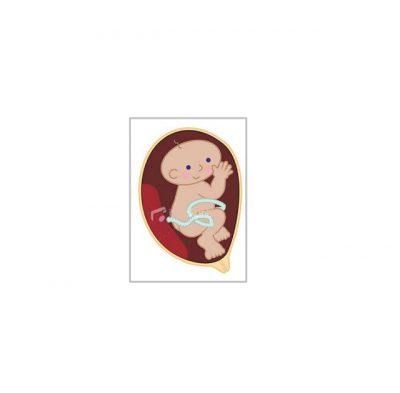 درباره سقط جنین 2